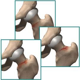 شکستگی های استرسی گردن استخوان ران