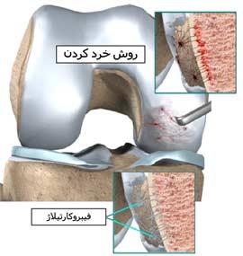 آسیب غضروف زانو