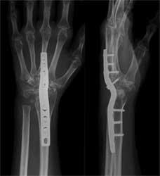 رادیوگرافی مچ دست بعد از انجام عمل جراحی خشک کردن