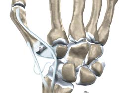 آرتروپلاستی شست دست