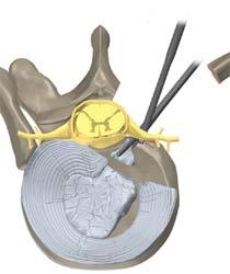 کوستوترانسورسکتومی