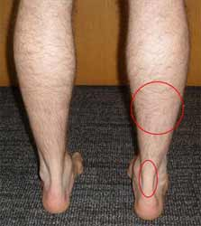 پارگی عضله ساق