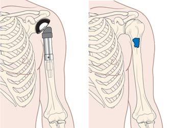 کارگذاری پروتز شانه بعد از خروج تومور