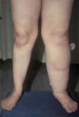 تورم یک طرفه ساق