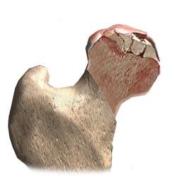 آسیب سر استخوان ران بدنبال نکروز