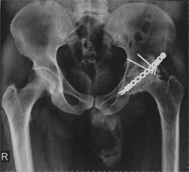 آرتروز مفصل ران بعد از شکستگی استابولوم و جراحی آن
