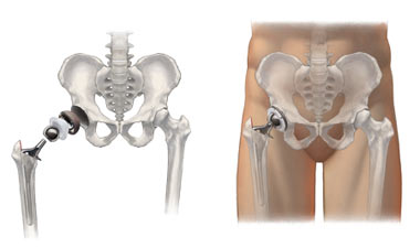 مفصل مصنوعی لگن و ران